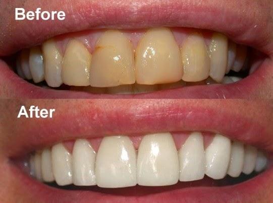 10 Tips Ampuh Cara Memutihkan Gigi Yang Kuning Secara Alami Tips
