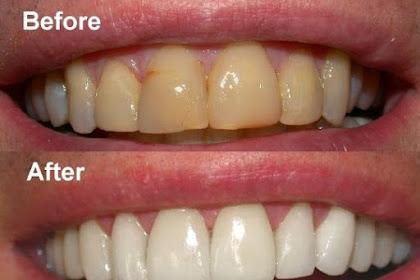 10 Tips Ampuh Cara Memutihkan Gigi Yang Kuning Secara Alami