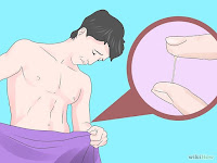 Obat Uretritis Gonore (Kencing Nanah)