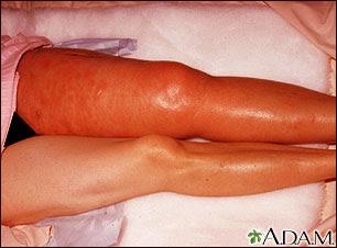 trombosis venosa femoral izquierda