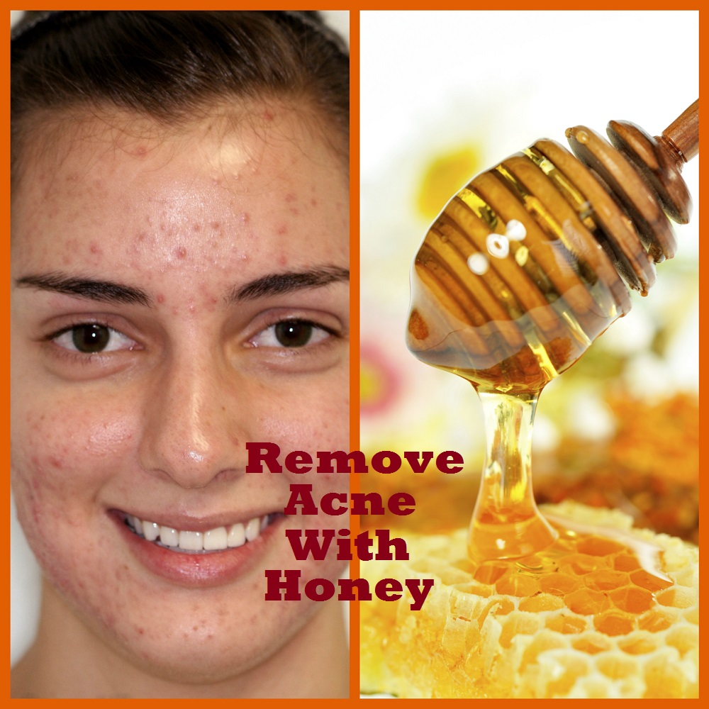 how to make acne go away home remedies