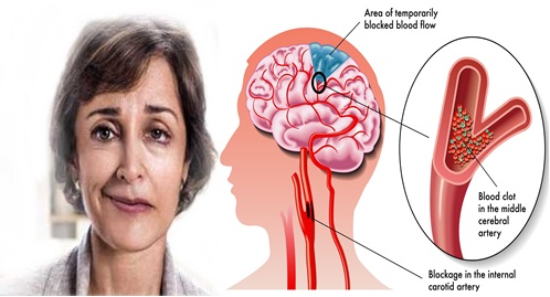 Cara mengatasi stroke dengan cepat