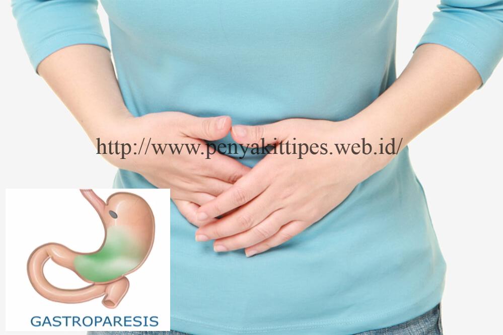 Penyebab Penyakit Gastroparesis