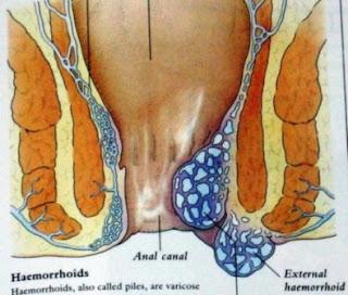 obat herbal untuk ambeien