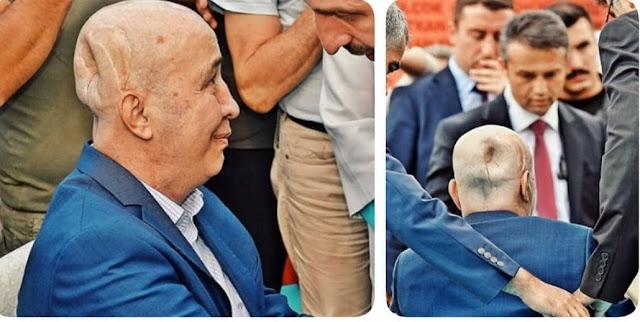 Pria ini Kepalanya Sampai Penyok Karena Ikut Bela Erdogan Saat Dikudeta