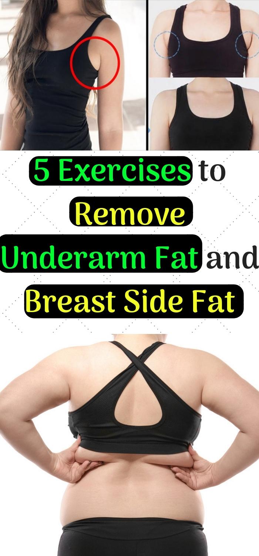 Breast Side Fat Reduce