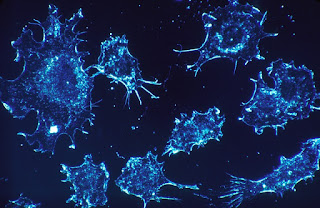 Cancer cells– Guts and also Passion