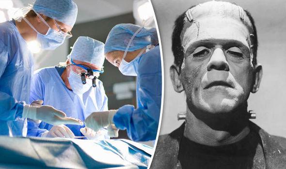 Human Head Transplant, Frankenstein, Sergio Canavero