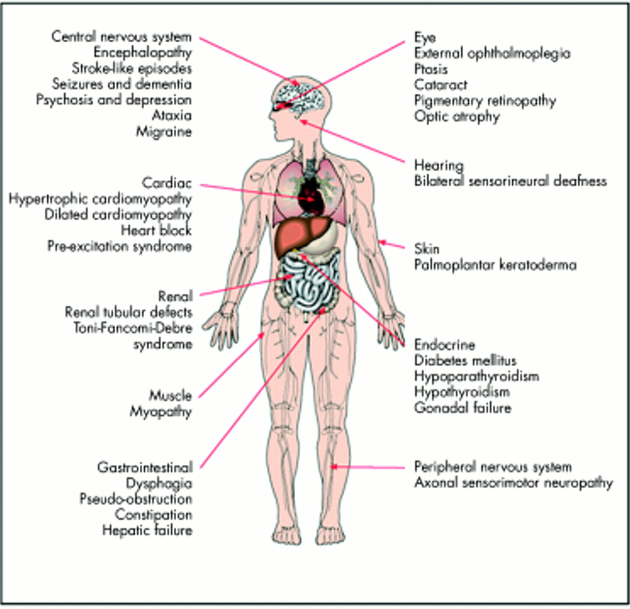 Berühmt Anatomy And Physiology Of Pneumonia Galerie - Anatomie Ideen ...