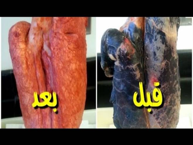 بالفيديو... افضل طريقة للتخلص من النيكوتين بالجسم خلال 24 ساعة استعيد صحتك بطريقة بسيطة