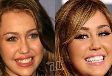la cirugia de dientes Miley Cyrus