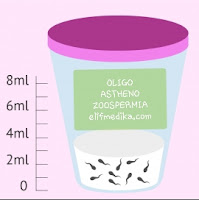 Cara mengobati oligoasthenozoospermia