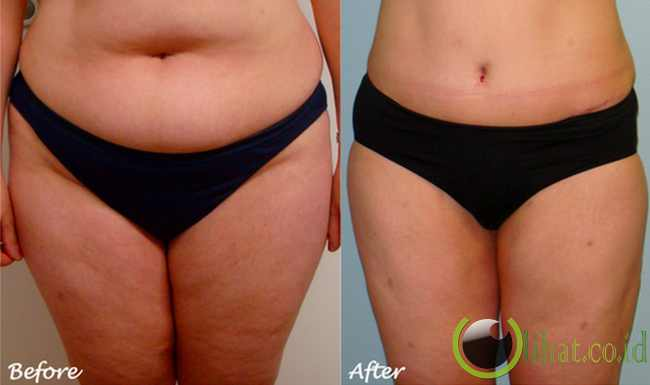Operasi Sedot Lemak (liposuction)
