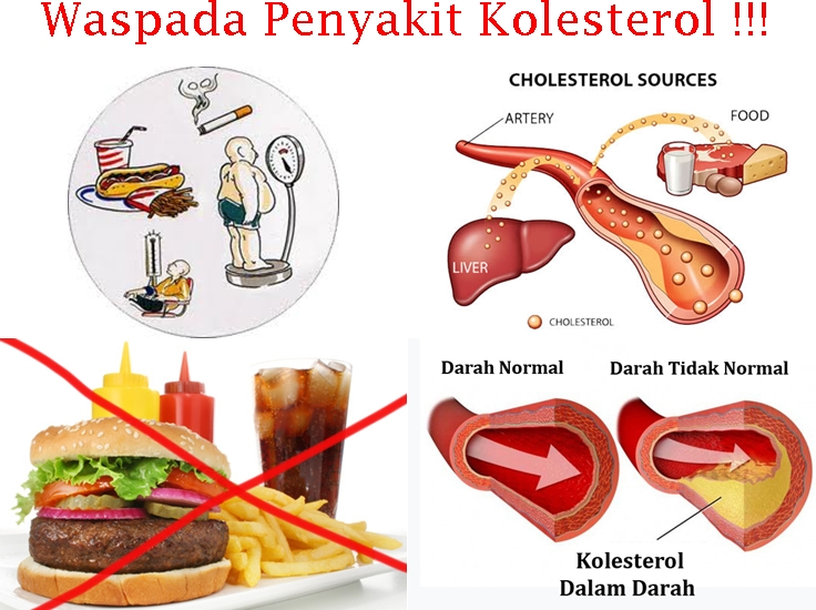 Menurunkan Kolesterol Tinggi Dalam Waktu Yang Singkat