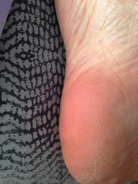 how to stop dry peeling feet