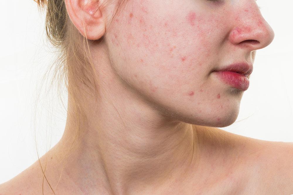 Rosácea 10 Tratamientos Naturales Y Efectivos Remedio Natural Para Curar La Rosacea