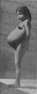 Лина Медина