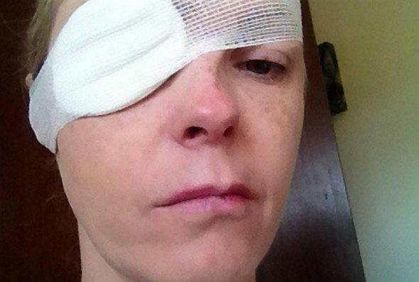 Небезпечна комаха: у жінки паралізувало обличчя після укусу