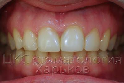 На фото передние зубы после реставрации