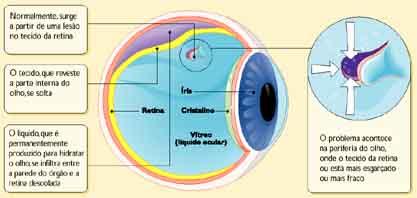 Image result for descolamento de retina