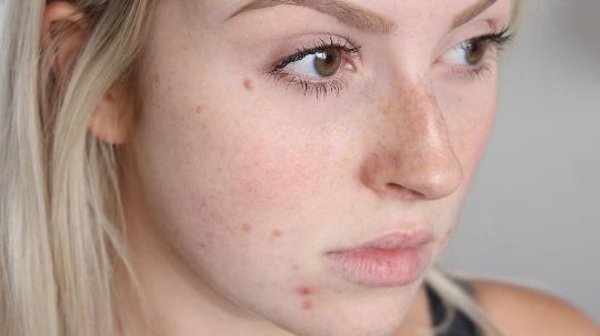 cara menghilangkan jerawat di muka
