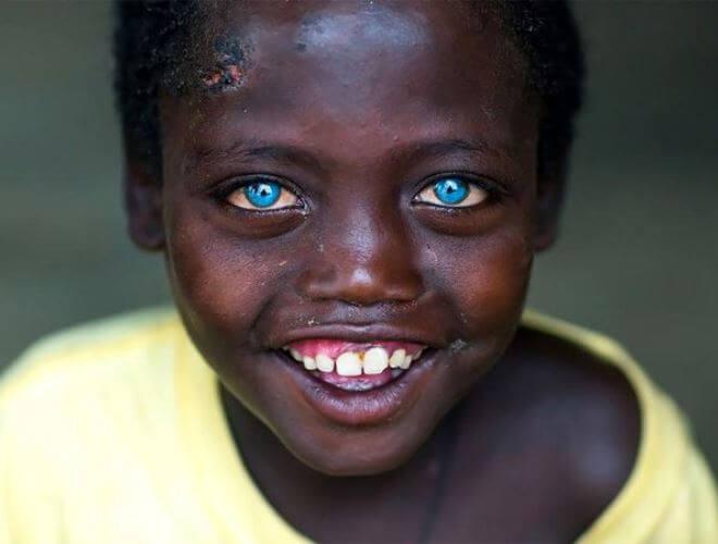 5 Individu Sindrom Mata Biru Waardenburg Yang Sangat Jarang Berlaku