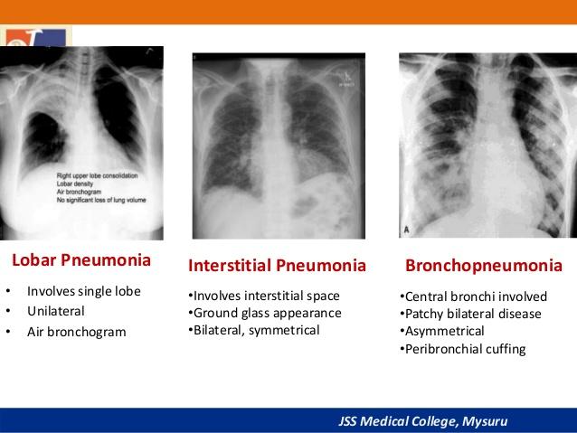pneumonia clinical aspect and rational treatment pharmacy portal