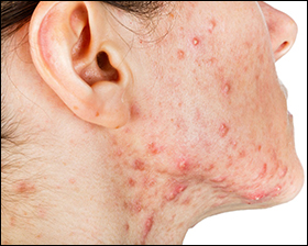 pitta imbalance, skin diseases, skin disorders, acne