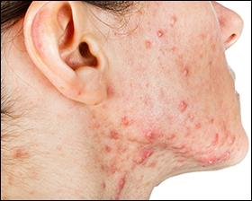 pitta imbalance, skin diseases, skin disorders, acne