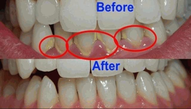 Cara untuk menghilangkan plak pada gigi
