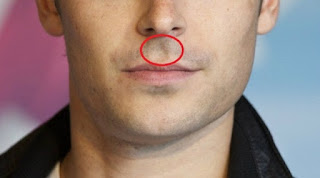 Long Philtrum Female & Male Causes, SurgeryCelebrities with Long Philtrum