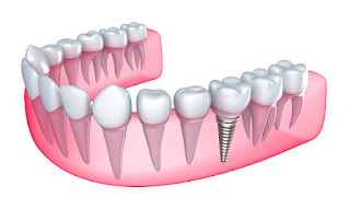 http://www.dentist-india-madurai.com/dental-services-dental-implants.html