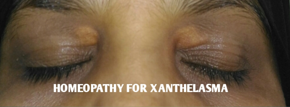 HOMEOPATHY FOR XANTHELASMA - ALL ABOUT HOMEOPATHY - HOMEOPATHY