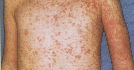 はしか: TROPICAL な日々: 麻疹(はしか)の流行 ベトナム Measles Outbreak In