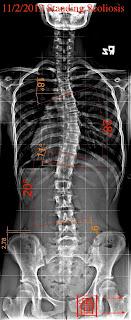 脊椎側彎, 脊椎側彎矯正, 脊椎側彎治療, 脊椎側彎骨盆, 脊椎側彎 推薦, 脊椎側彎 台中