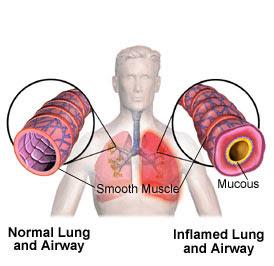 Obat Tradisional Pneumonia Eosinofilik