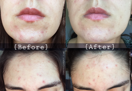 Neutrogena Non-Foaming Cleanser Before & After :: The Acne Experiment