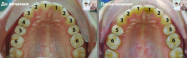 Центр зубов до и после ортодонтического лечения