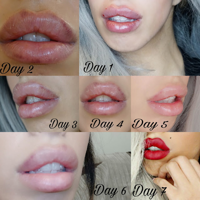LIP FILLER SIDE EFFECTS SY CLINIC