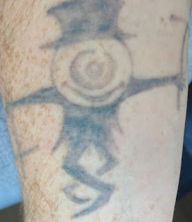 Tattoo fading after Picosure