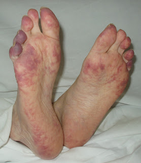 Deep Vein Thrombosis And The Side Effects Of Heparin