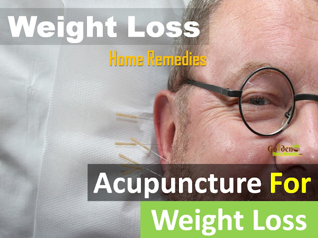 Acupuncture For Weight Loss, Acupressure Points to Lose Weight, What Is Acupuncture, Does Acupuncture Work for Weight Loss, Can Acupuncture Help You Lose Weight, Acupuncture And Weight Loss, Most Important Acupressure Points to Lose Weight