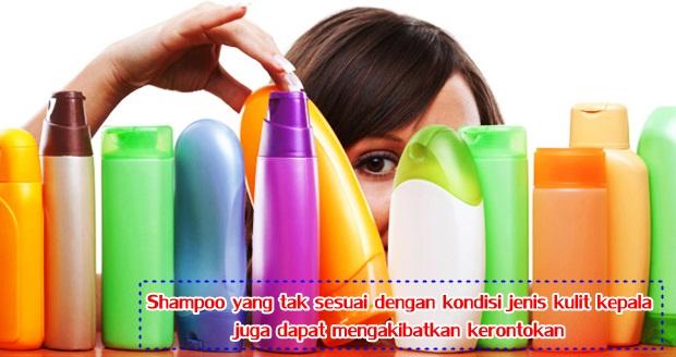 Shampoo yang tak sesuai dengan kondisi jenis kulit kepala juga dapat mengakibatkan kerontokan.jpg