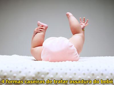 4-formas-caseiras-de-tratar-assadura-do-bebe