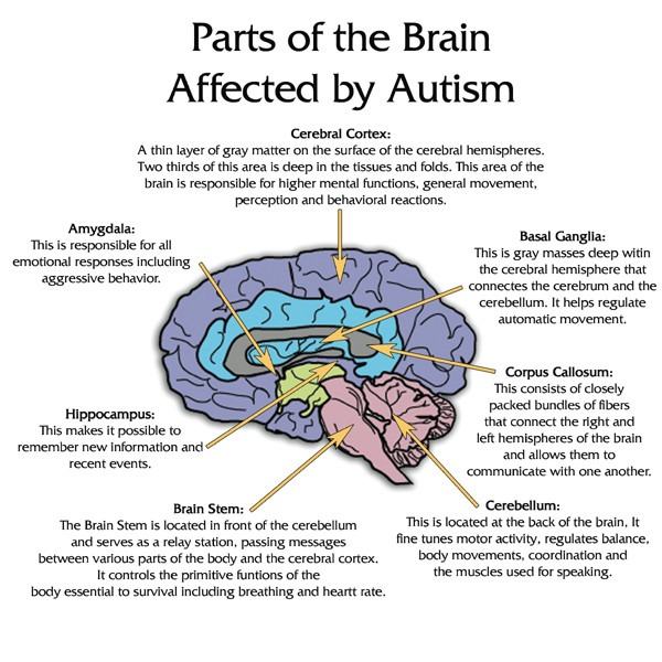 Autistically Beautiful : Parts of the Brain Affected by Autism