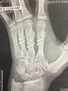Broken Bones, Surgery For Broken Bones, Screws In Bones