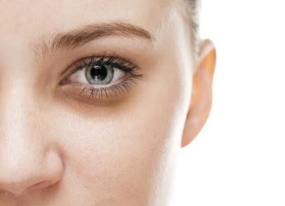 Natural remedies and Home remedies for Dark Circles Under Eyes