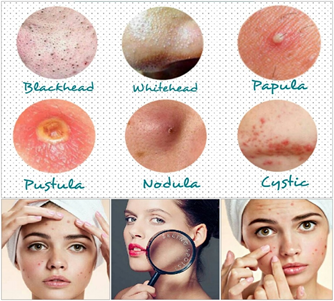 Kenali Penyebab, Jenis Jerawat dan Cara Mengobatinya ala Dermatologist