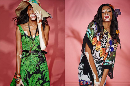 100 Women 2016: Model Winnie Harlow on confidence and defiance