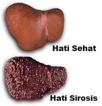 Pengobatan Alternatif Sirosis Hati
